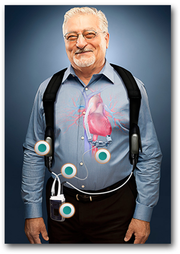 A left ventricular assist device (LVAD) replaces some of the work of a patient's left ventricle, constantly circulating blood throughout the body. Image courtesy: Thoratec